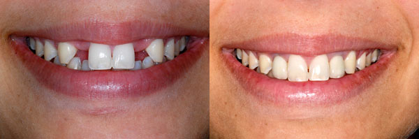 Two Stage Dental Implants