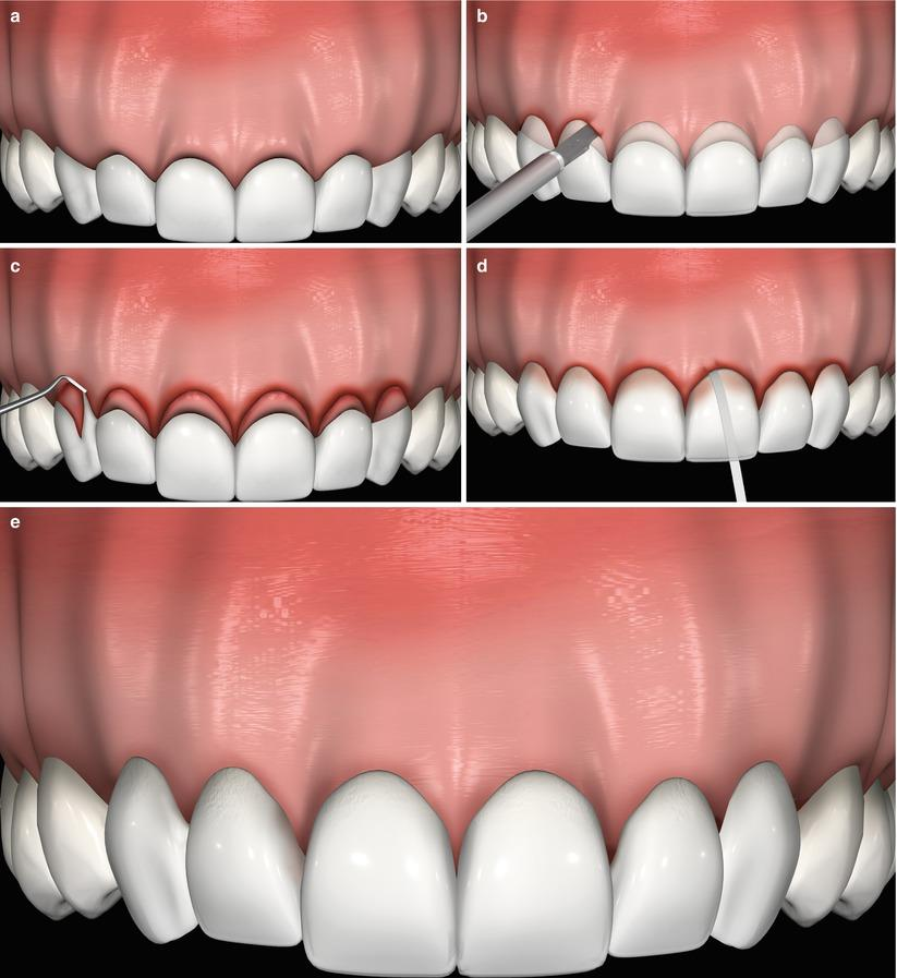 LASERS IN GUM TREATMENT