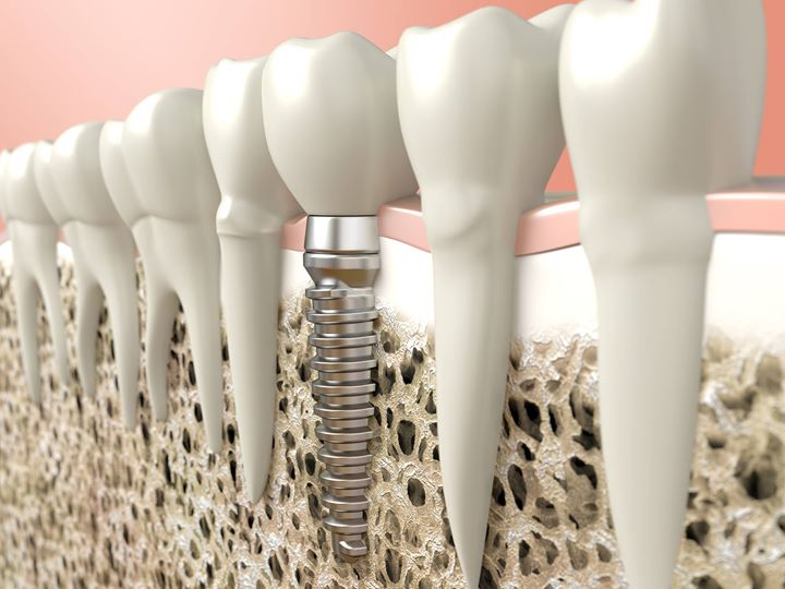 Free consultation for IMPLANT