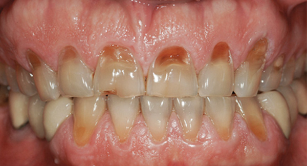BRUXISM- EFFECTS &TREATMENT