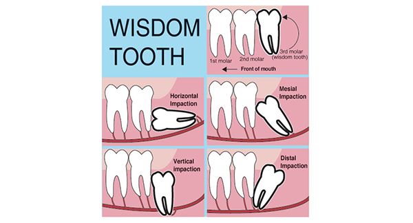 Do I Need My Wisdom Teeth Removed?