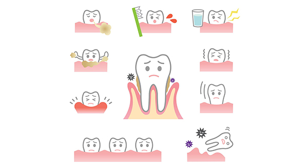Common causes of mobility of teeth