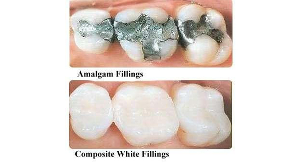 COMPOSITES- THE MOST VERSATILE TOOTH COLORED FILLING MATERIAL