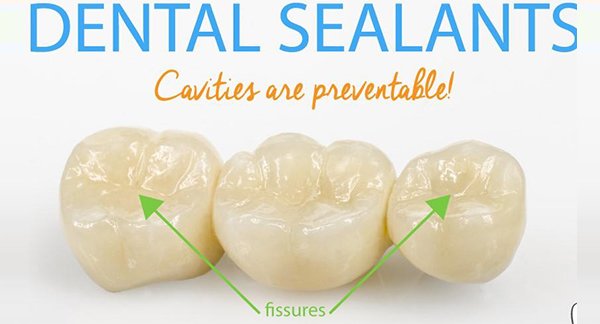 What are dental sealants and who should get them?