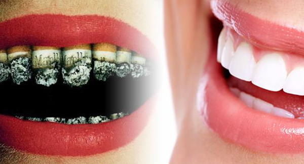 Effects of Smoking on Oral Health
