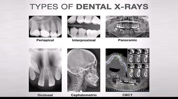 All you want to know about Dental X-rays?