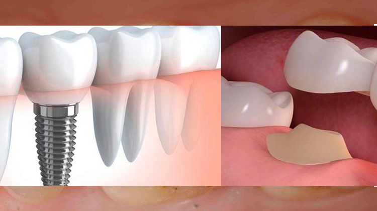 Are you confused between dental implant or a bridge for the treatment of your missing tooth?