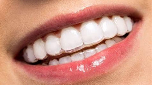Invisalign: An alternative to metal braces