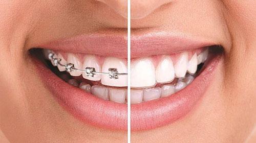 Orthodontics- It's more than braces now!